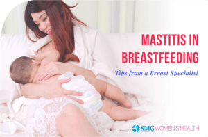 How to Manage Mastitis in Breastfeeding