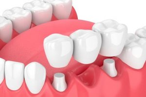 How To Care For Your Dental Bridge