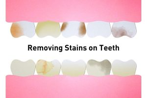 Removing Stains on Teeth